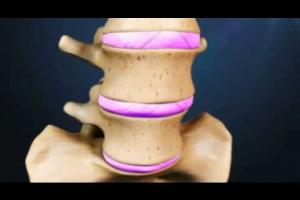 Embedded thumbnail for Basic Lumbar Anatomy Video